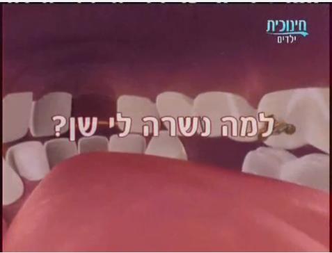 אדיבו פרק 20-למה נשרה לי שן